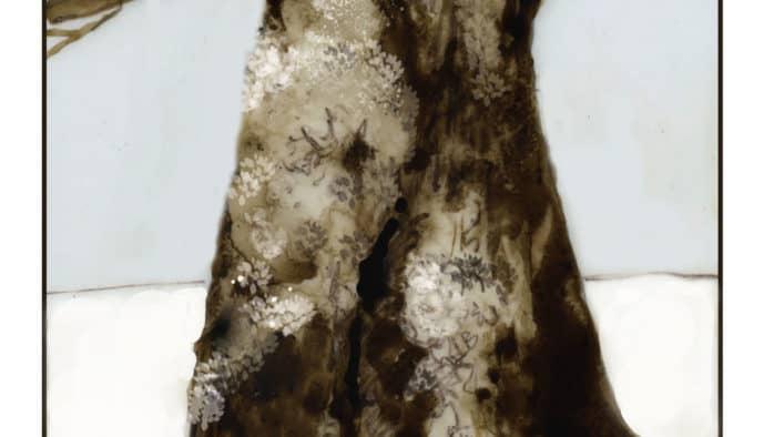 Lichens: winter survivalists